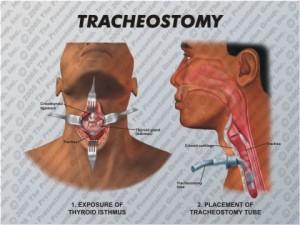 Tracheostomy Diagram
