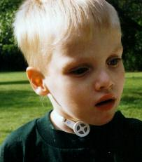 Child with a Tracheostomy