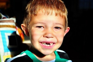 Child Missing Front Teeth