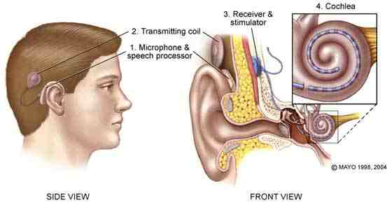 Is A Cochlear Implant Right For Your Child