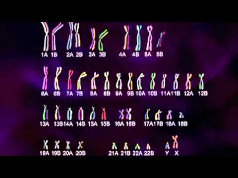 Trisomy 21 Chart