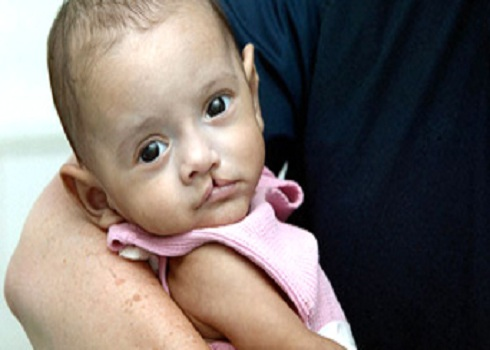 Child with Cleft Palate
