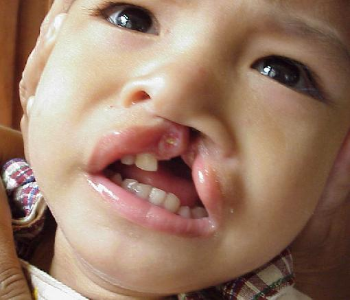 child with cleft